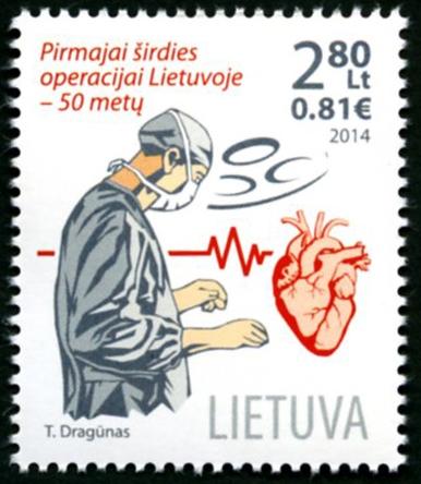 21  Pirmoji širdies operacija